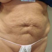 Argera_liposuction_abdomen_hips_12a_before.jpg