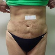 Argera_liposuction_abdomen_hips_12a_post.jpg