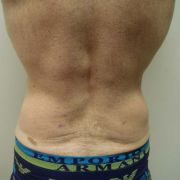 Argera_liposuction_abdomen_hips_5b_post.jpg