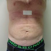 Argera_Liposuction_abdomen_1a_post.jpg